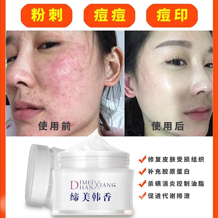 汉芳医美 祛斑祛痘需要多少钱 娥皇玉妍护肤品好吗